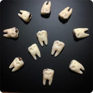 虫歯マグネット